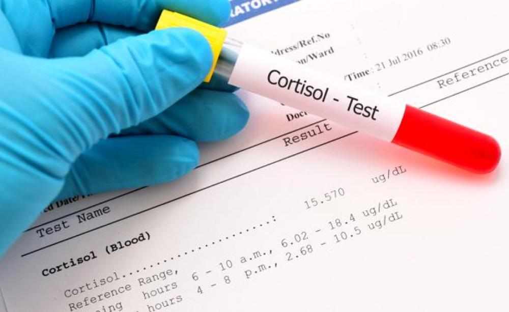 Cortisol-Test