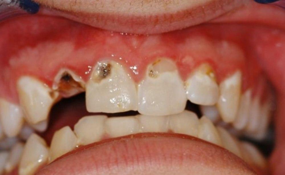 Atemwegserkrankungen erhöhen Kariesrate bei bleibenden Zähnen