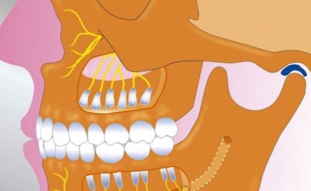 Die juvenile idiopathische Arthritis der Kiefergelenke