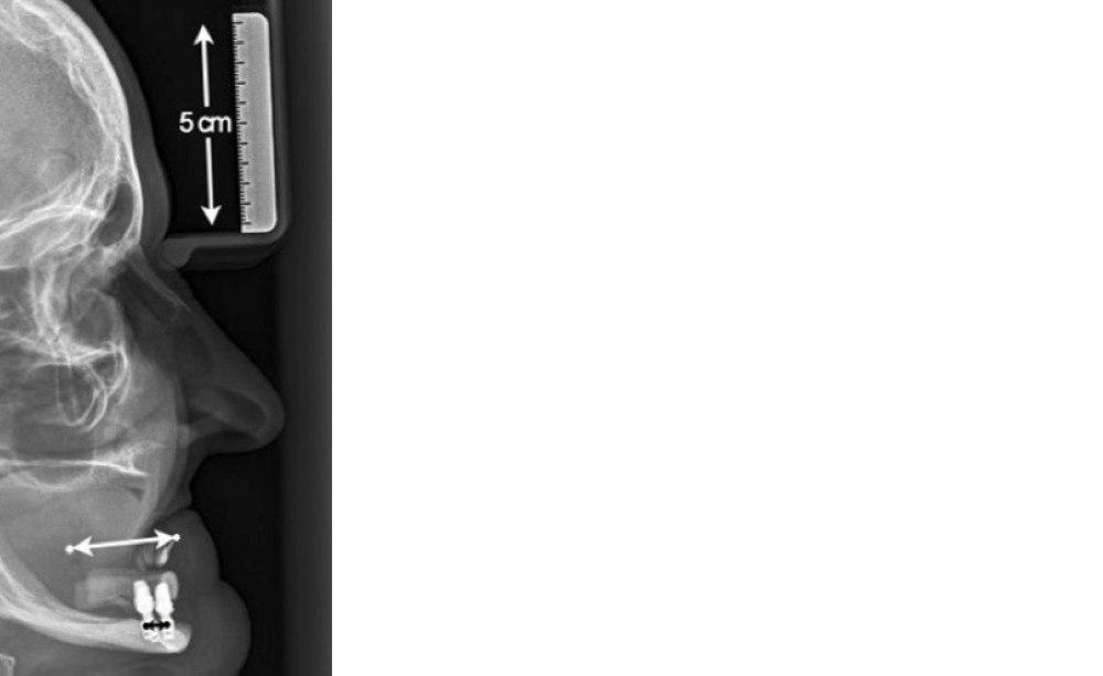 implantate ber 6 mm l nge sind nicht mehr notwendig. Black Bedroom Furniture Sets. Home Design Ideas