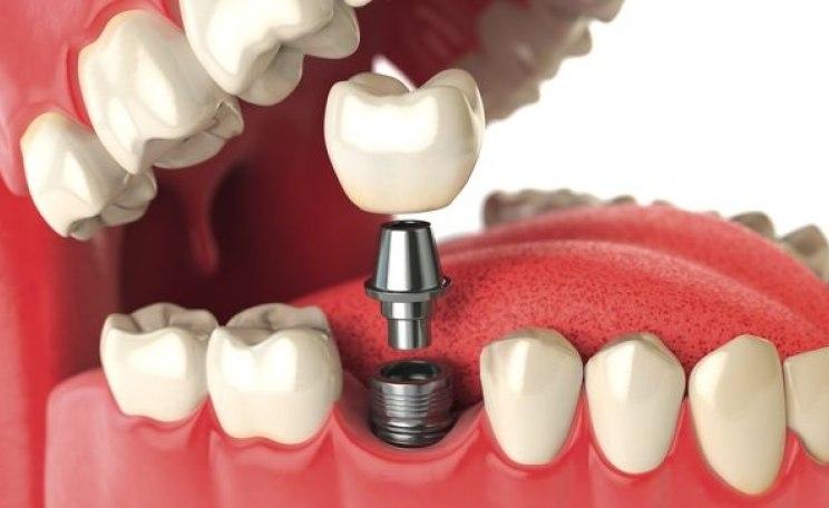 implantat abdichtung die zahnarzt woche. Black Bedroom Furniture Sets. Home Design Ideas